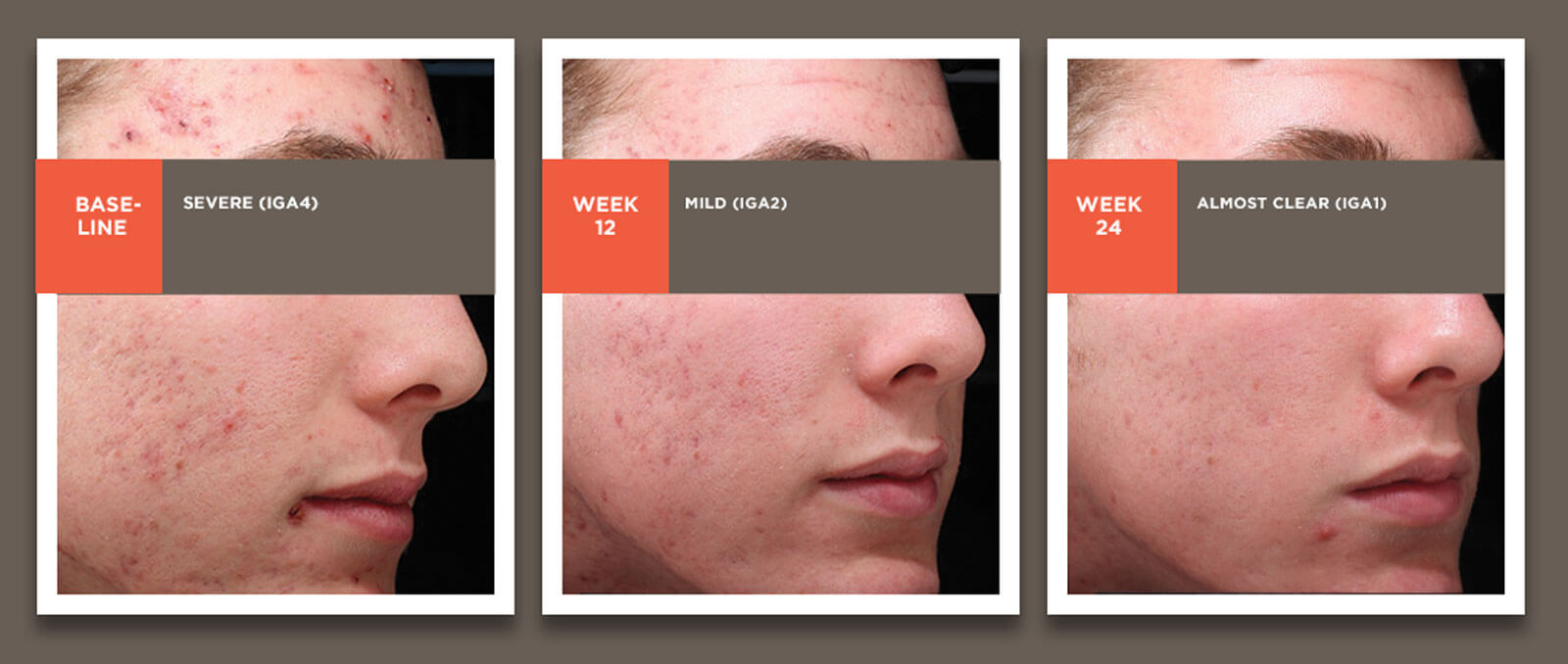 Images showing acne treatment results from baseline through 24 weeks in a 16-yo white male.
