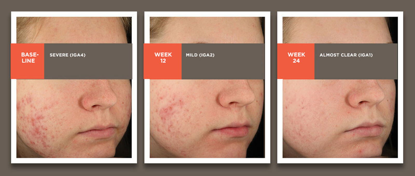 Images showing acne treatment results from baseline through 24 weeks in an 18-yo white female.