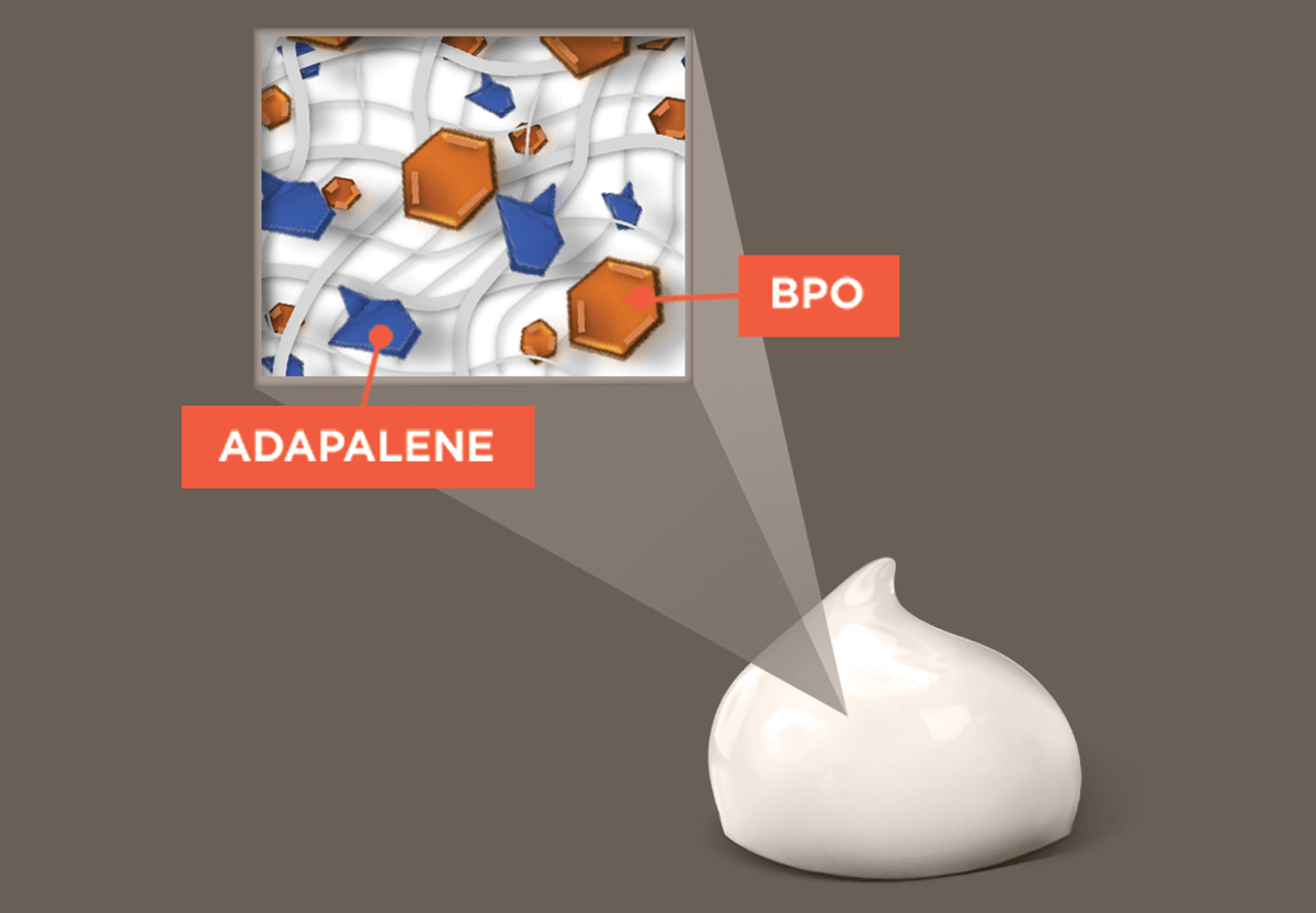 Image of simulgel containing adapalene and BPO.