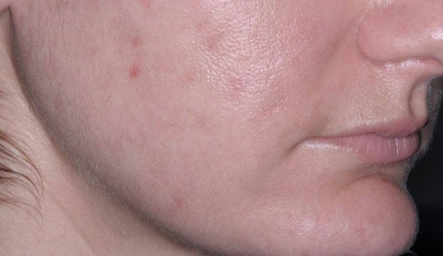 Before and after acne picture of patient using Epiduo® Forte Gel.